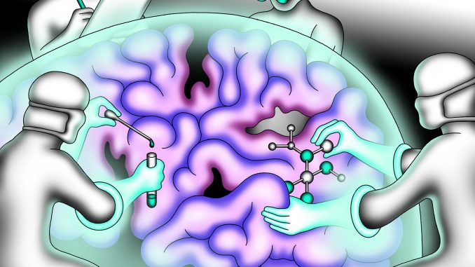 điều trị alzheimer
